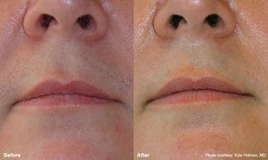 Soraya-laser-hair-removal-Cavitation-cellulite-Anti-again-weightloss-regimen-acne-dermalift-purelight-body-treatment-dermapod- beauty-salon-spa-injectiontreatmen-non-surgical-rejuvenate-skin-facial
